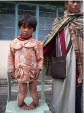 2007 Reisebericht Indien - 09 Kind Rachitis